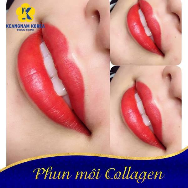 phun moi collagen 2